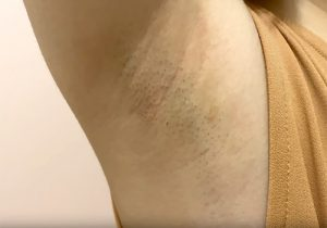 すんごいジョリワキを赤裸々に撮られてしまった20代素人女子(本編顔出し有)