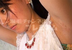 脇の下の剃り跡が生々しすぎる素人女子学生さんを撮った問題作
