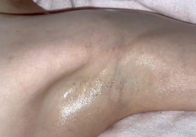 リンパマッサージで剃り残しのあるジョリワキを撮られてしまった素人モデル